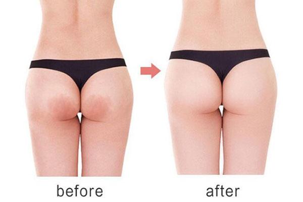 Mango Sexy Buttock Enhancement Cream